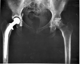 Hip_replacement_Image_3684-PH.jpg